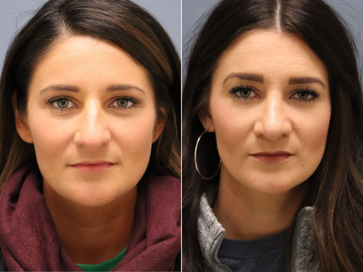 Nose Reshaping (Rhinoplasty) Before and After Photos in Lexington, KY, Patient 20950