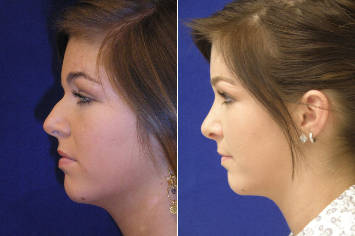 Nose Reshaping (Rhinoplasty) Before and After Photos in Lexington, KY, Patient 20968
