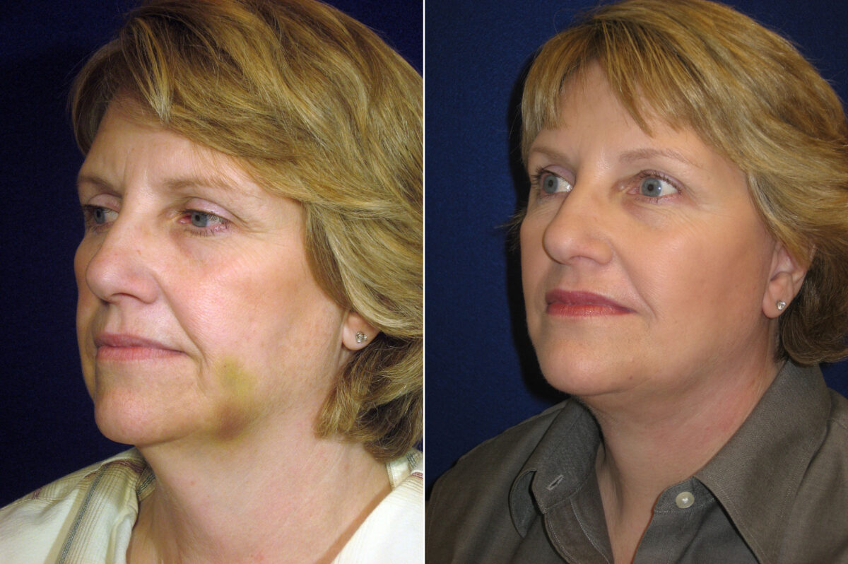 Brow Lift Before and After Photos in Lexington, KY, Patient 20980