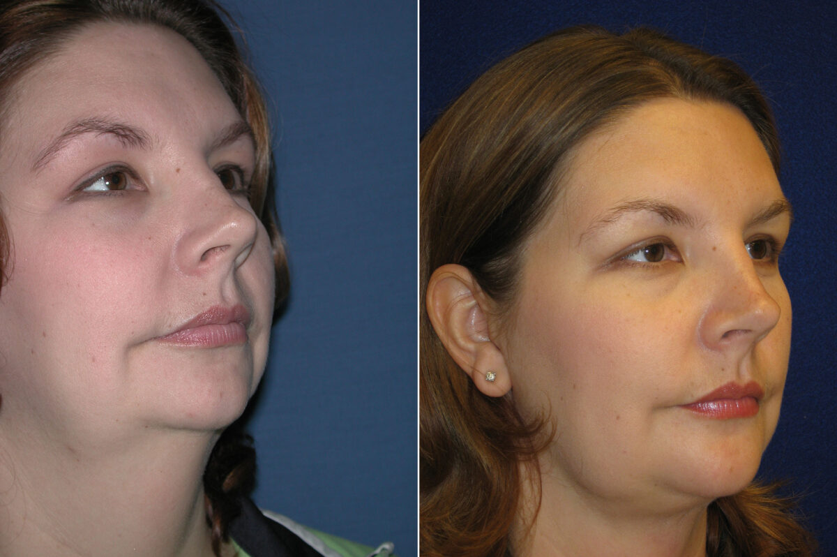 Neck Liposuction Before and After Photos in Lexington, KY, Patient 20991