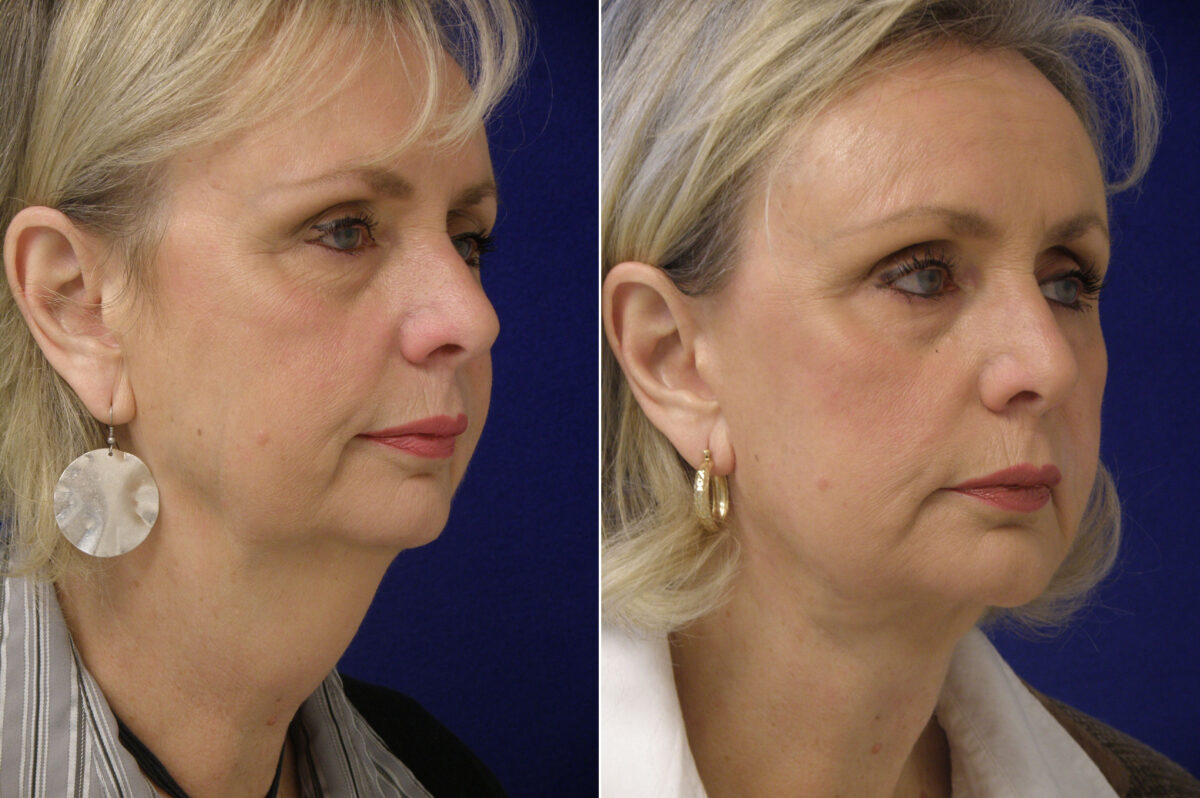 Chin Augmentation Before and After Photos in Lexington, KY, Patient 21008