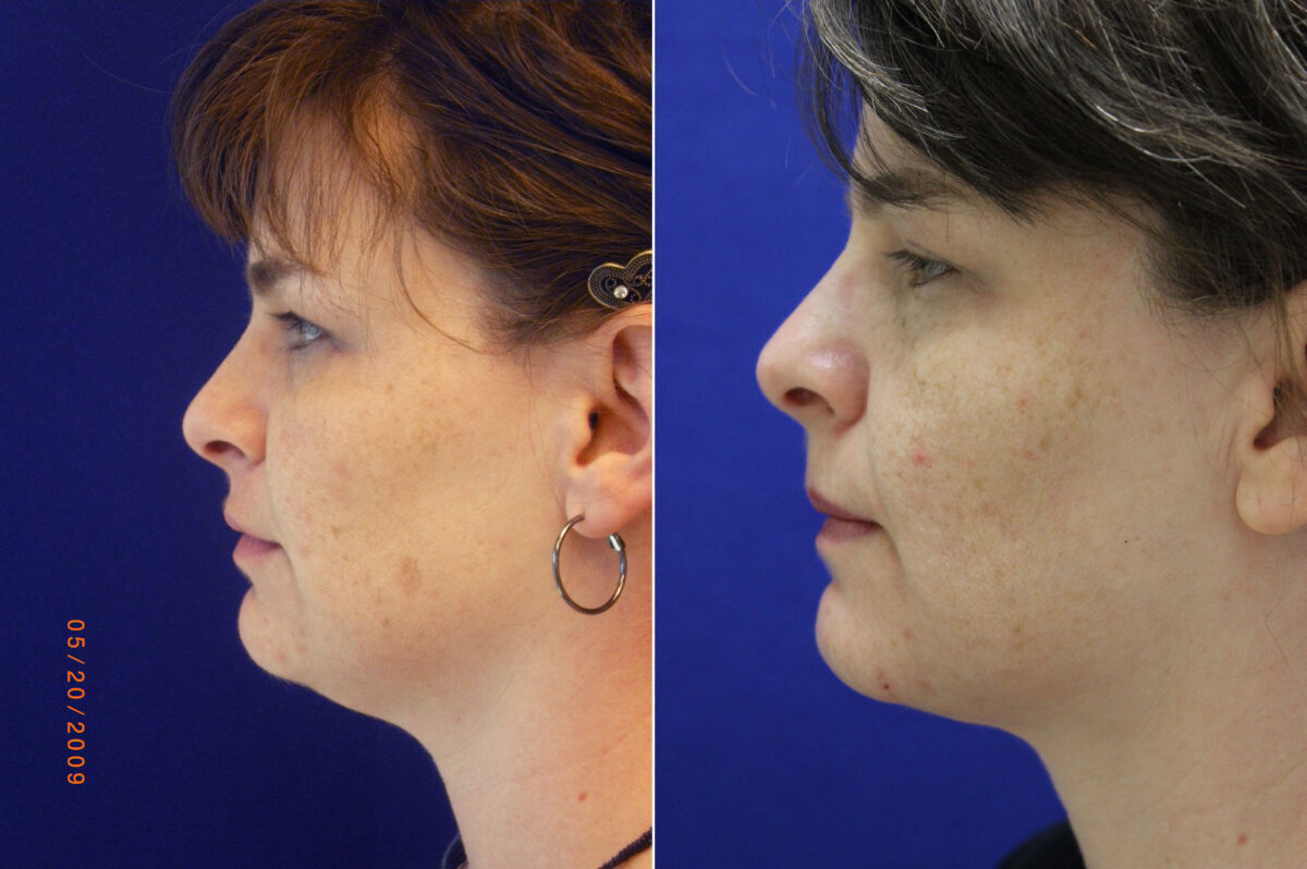 Neck Liposuction Before and After Photos in Lexington, KY, Patient 21023