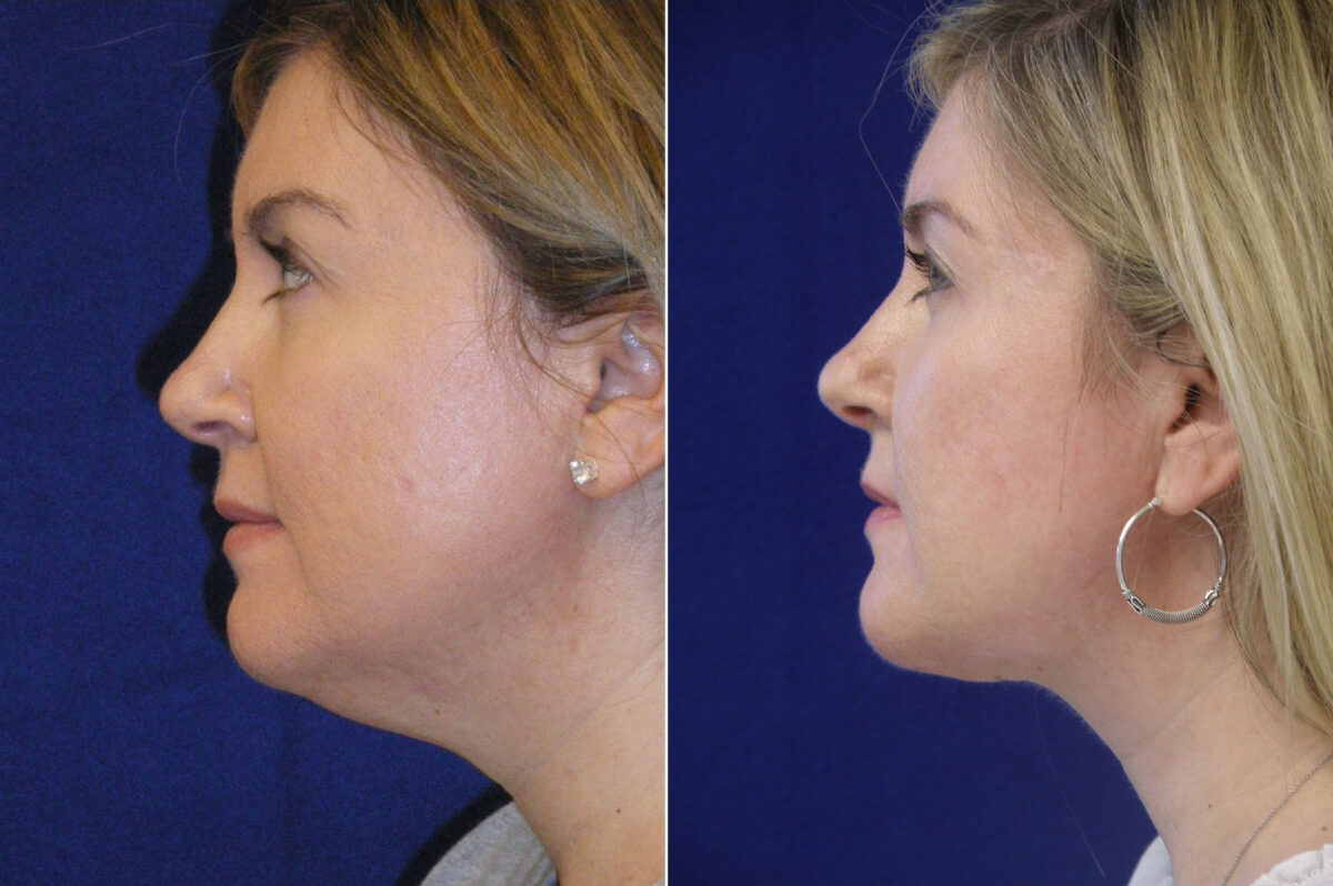 Neck Liposuction Before and After Photos in Lexington, KY, Patient 21041