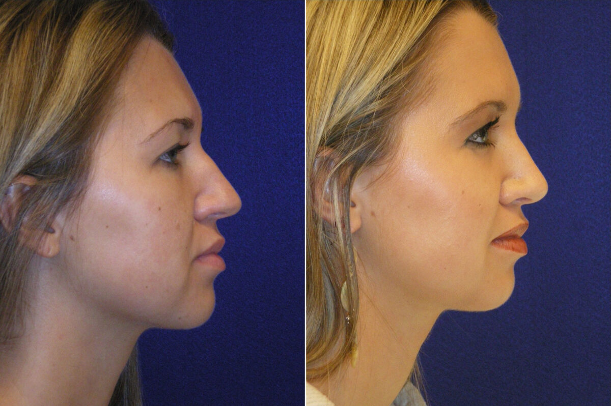 Nose Reshaping (Rhinoplasty) Before and After Photos in Lexington, KY, Patient 21059