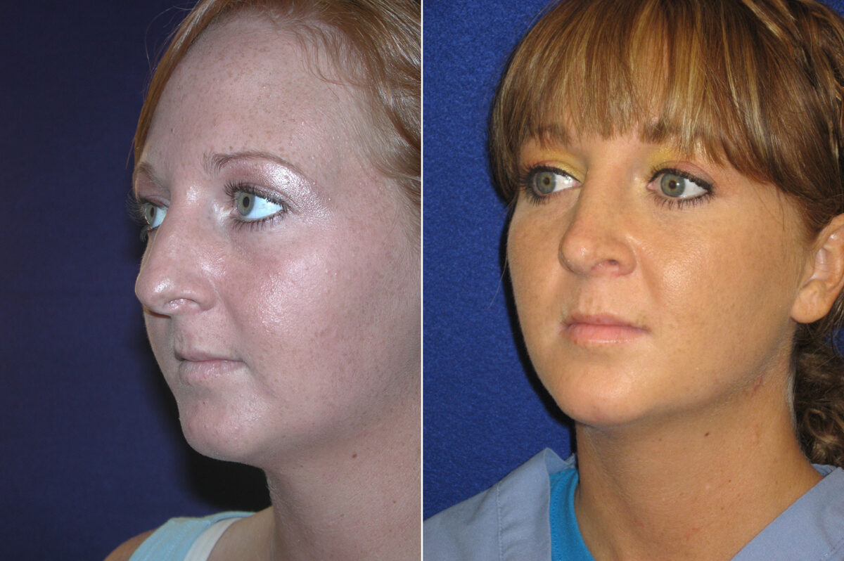 Nose Reshaping (Rhinoplasty) Before and After Photos in Lexington, KY, Patient 21077