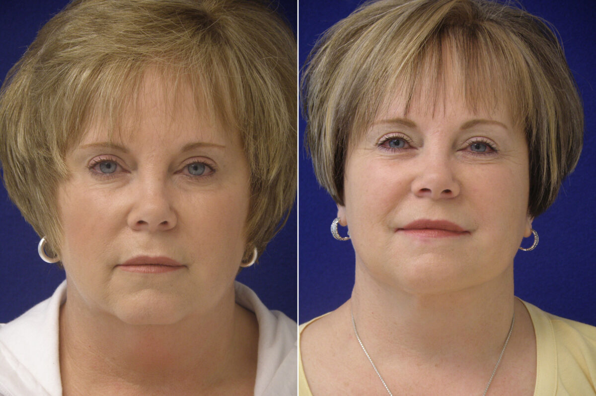 Facelift Before and After Photos in Lexington, KY, Patient 21094