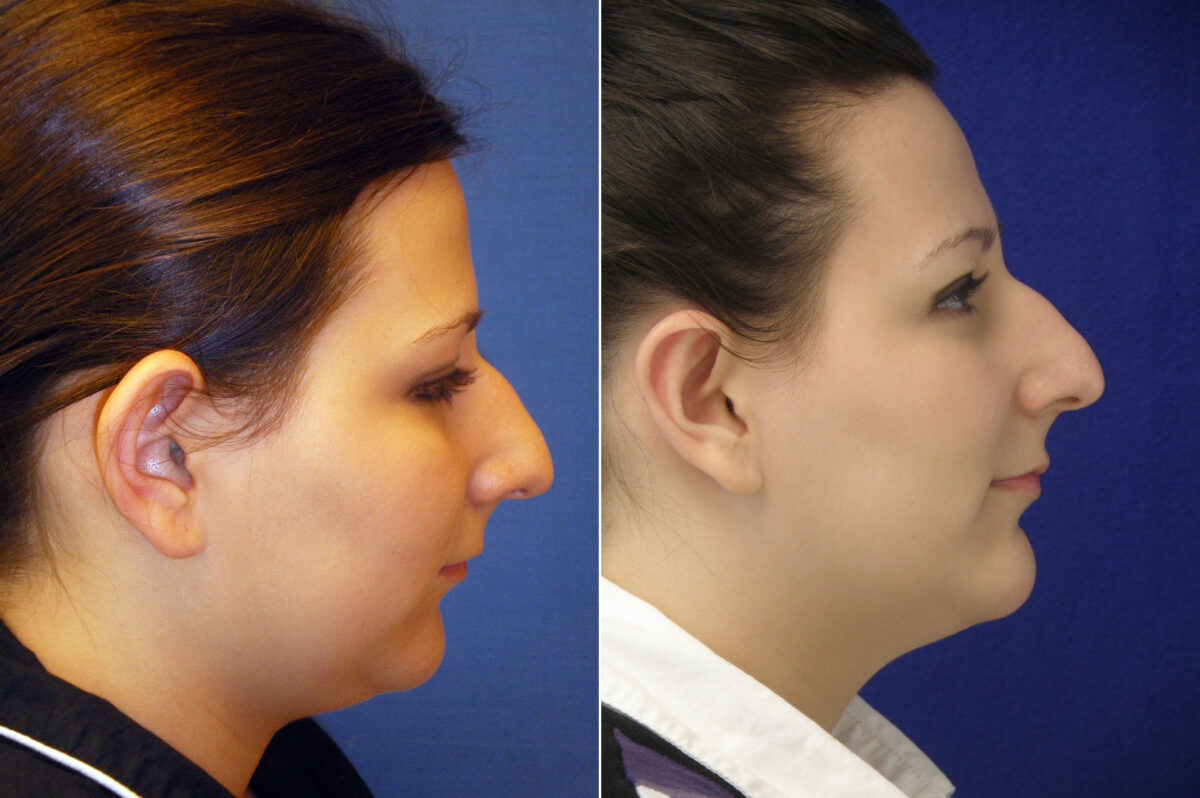 Ear Enhancements Before and After Photos in Lexington, KY, Patient 21111