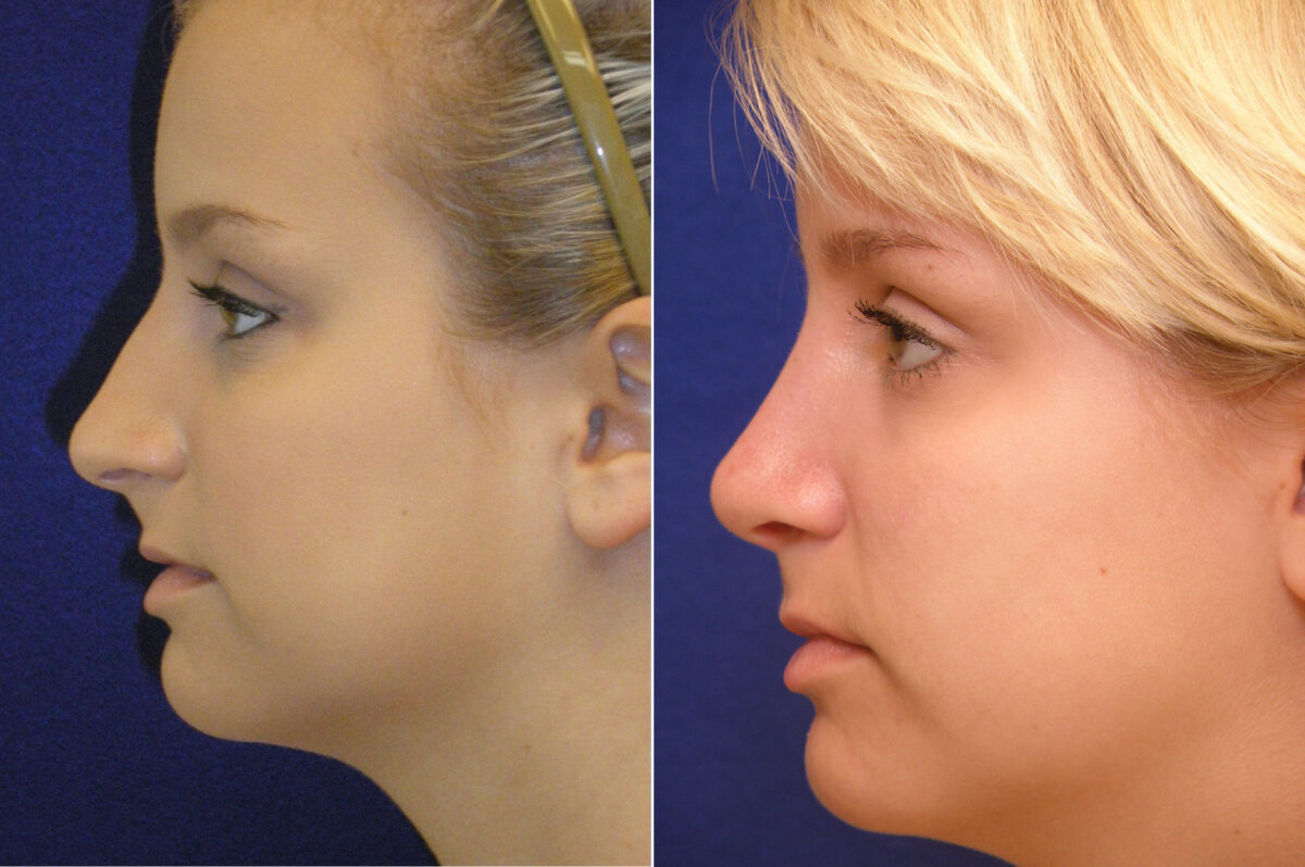 Nose Reshaping (Rhinoplasty) Before and After Photos in Lexington, KY, Patient 21134