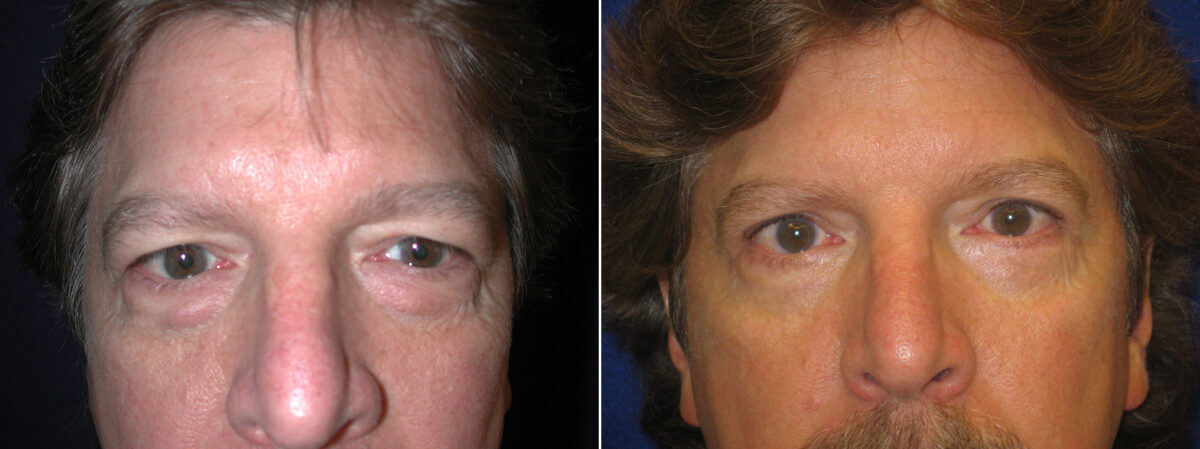 Lower Blepharoplasty Before and After Photos in Lexington, KY, Patient 21149