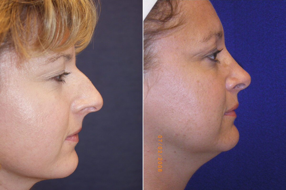 Nose Reshaping (Rhinoplasty) Before and After Photos in Lexington, KY, Patient 21162
