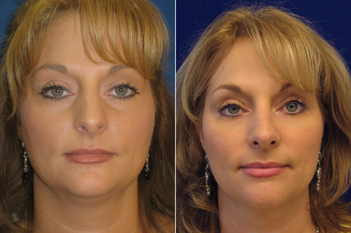 Nose Reshaping (Rhinoplasty) Before and After Photos in Lexington, KY, Patient 21190