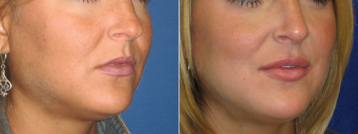 Lip Enhancement Before and After Photos in Lexington, KY, Patient 21205