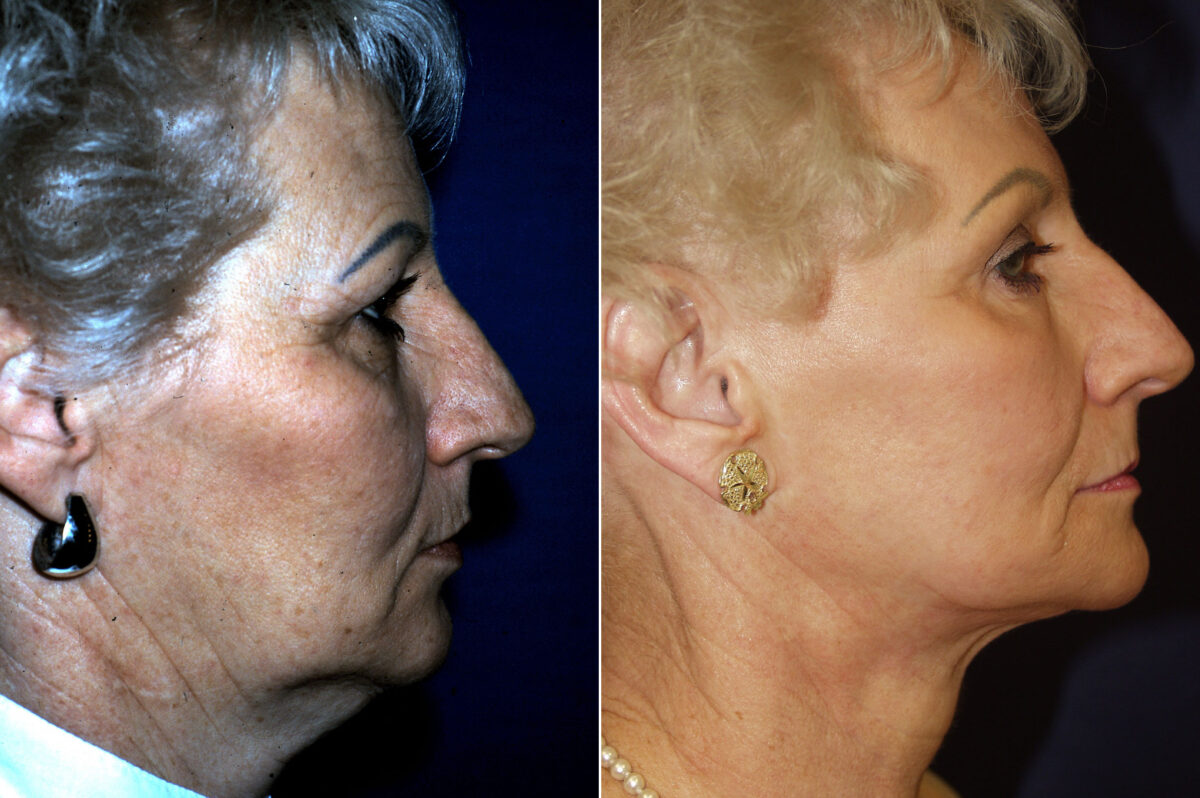 C02 Laser Skin Rejuvenation Before and After Photos in Lexington, KY, Patient 21211
