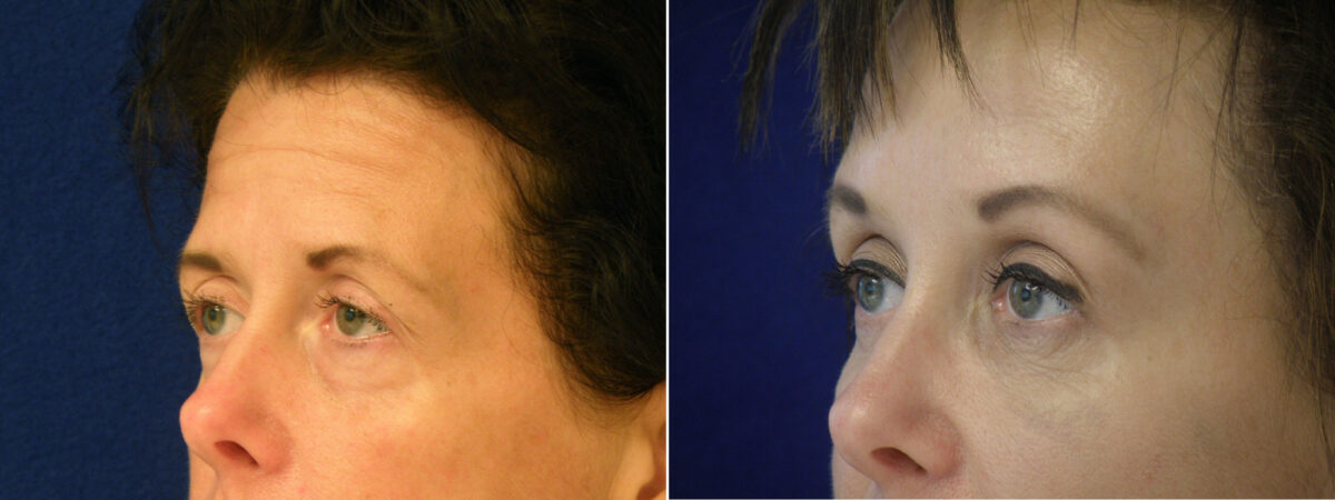 Brow Lift Before and After Photos in Lexington, KY, Patient 21223