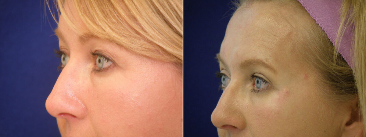 Upper Blepharoplasty Before and After Photos in Lexington, KY, Patient 21235