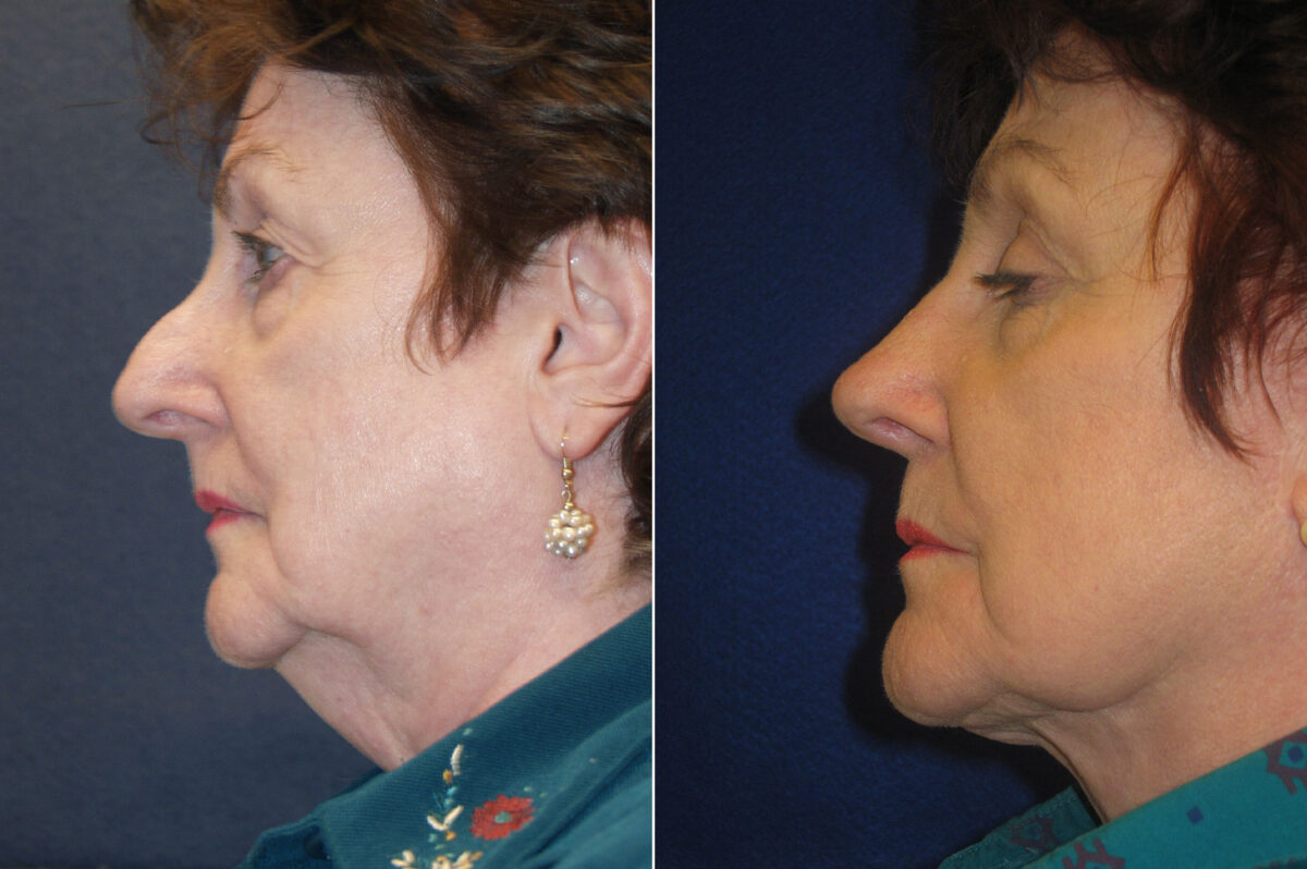 Nose Reshaping (Rhinoplasty) Before and After Photos in Lexington, KY, Patient 21244