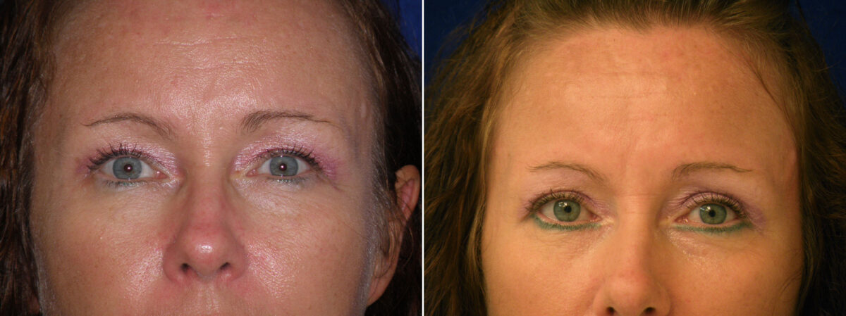 Upper Blepharoplasty Before and After Photos in Lexington, KY, Patient 21259