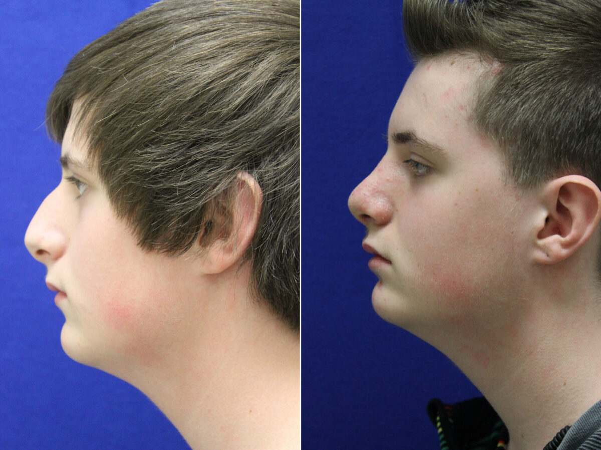 Nose Reshaping (Rhinoplasty) Before and After Photos in Lexington, KY, Patient 21274