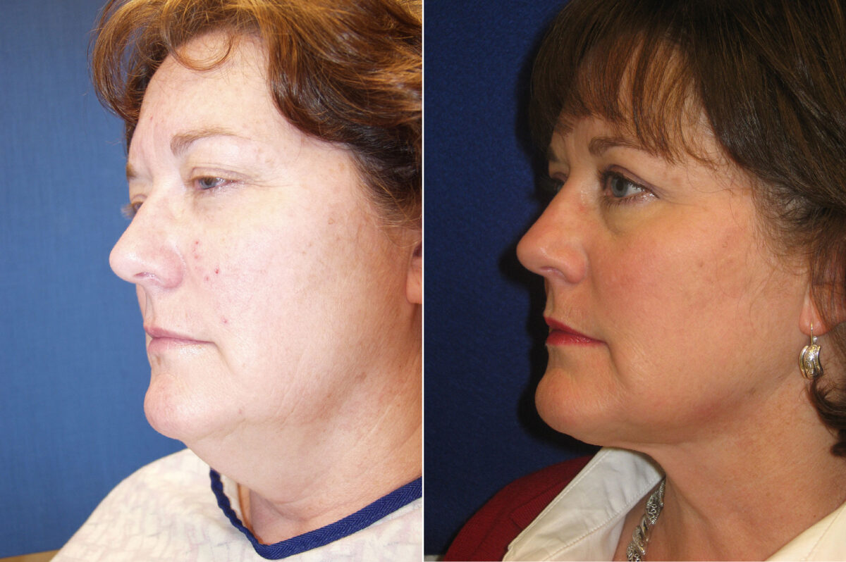 Neck Liposuction Before and After Photos in Lexington, KY, Patient 21288