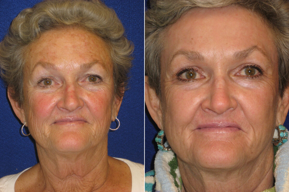 C02 Laser Skin Rejuvenation Before and After Photos in Lexington, KY, Patient 21300