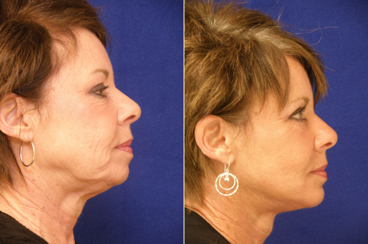 Chin Augmentation Before and After Photos in Lexington, KY, Patient 6447