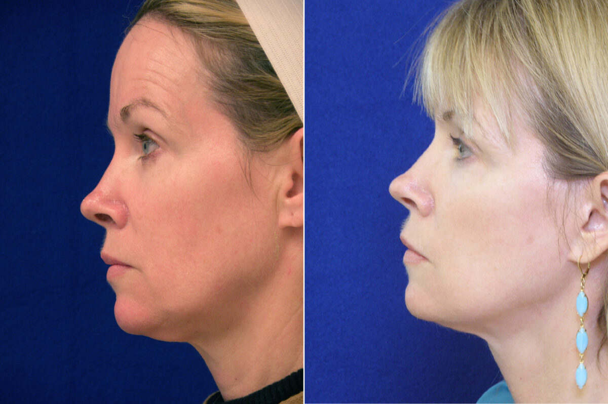Facelift Before and After Photos in Lexington, KY, Patient 6477