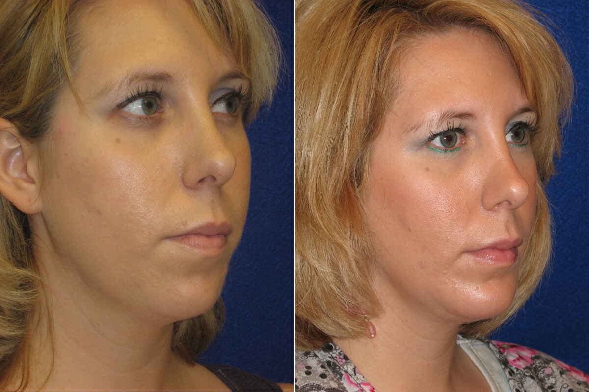 Chin Augmentation Before and After Photos in Lexington, KY, Patient 6612