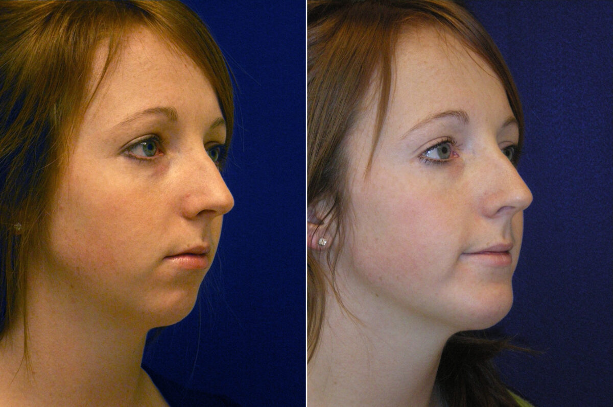 Chin Augmentation Before and After Photos in Lexington, KY, Patient 6700
