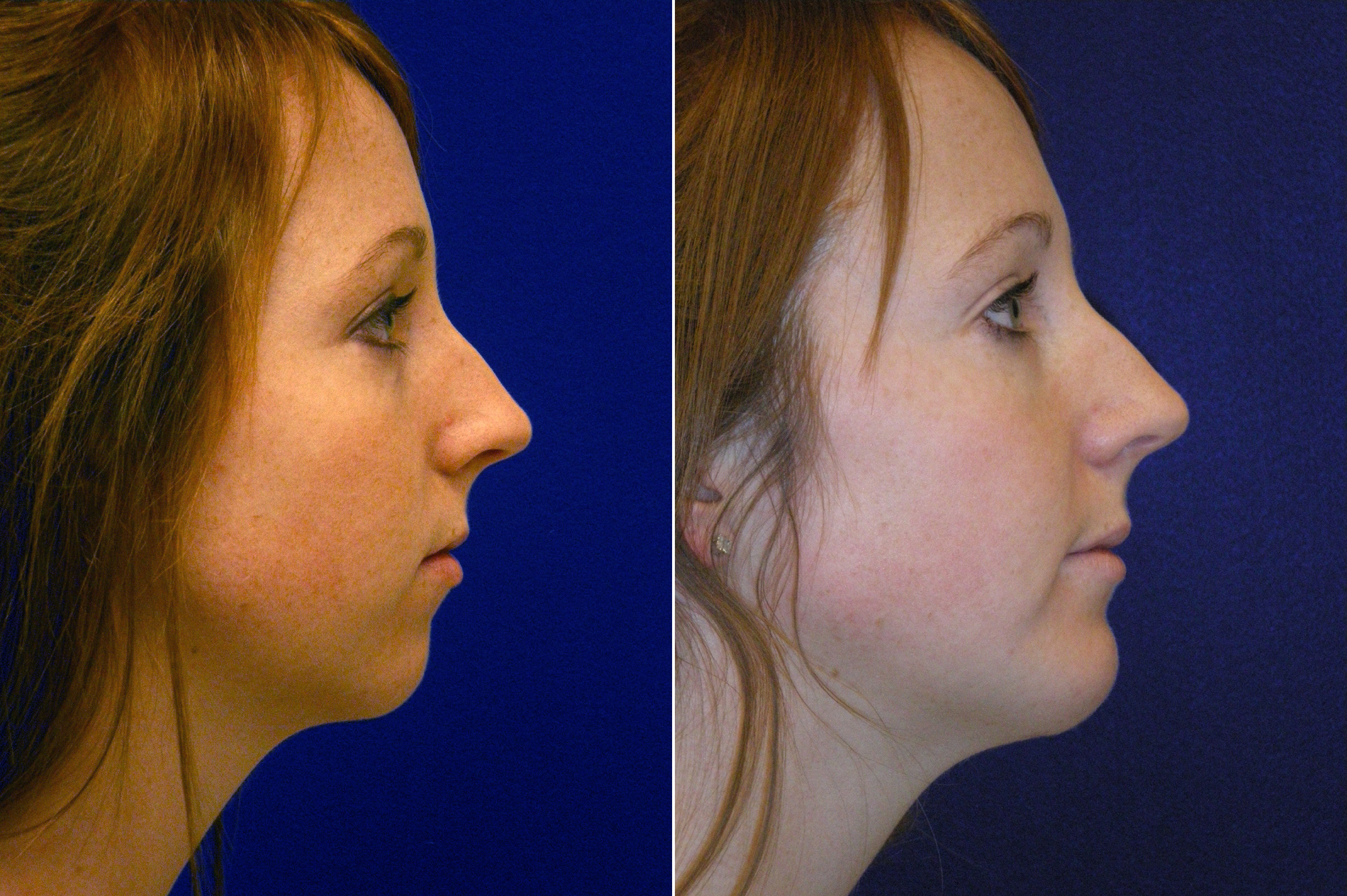 Before and After Photos in , , Chin Augmentation