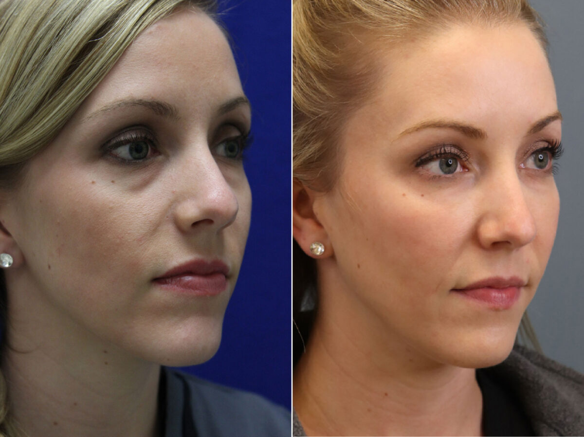 Injectable Fillers Before and After Photos in Lexington, KY, Patient 6858