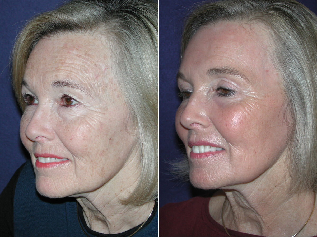 C02 Laser Skin Rejuvenation Before and After Photos in Lexington, KY, Patient 6912