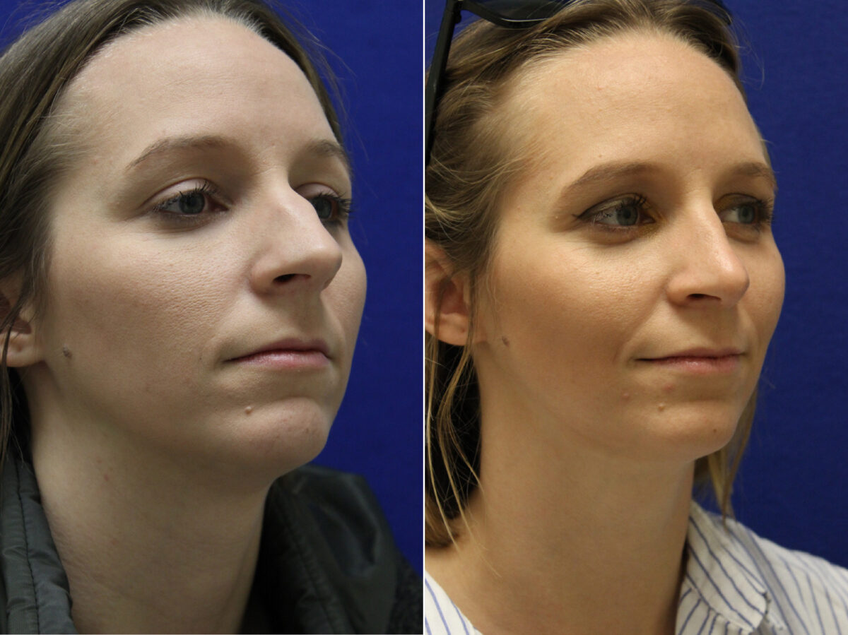 Nose Reshaping (Rhinoplasty) Before and After Photos in Lexington, KY, Patient 7030