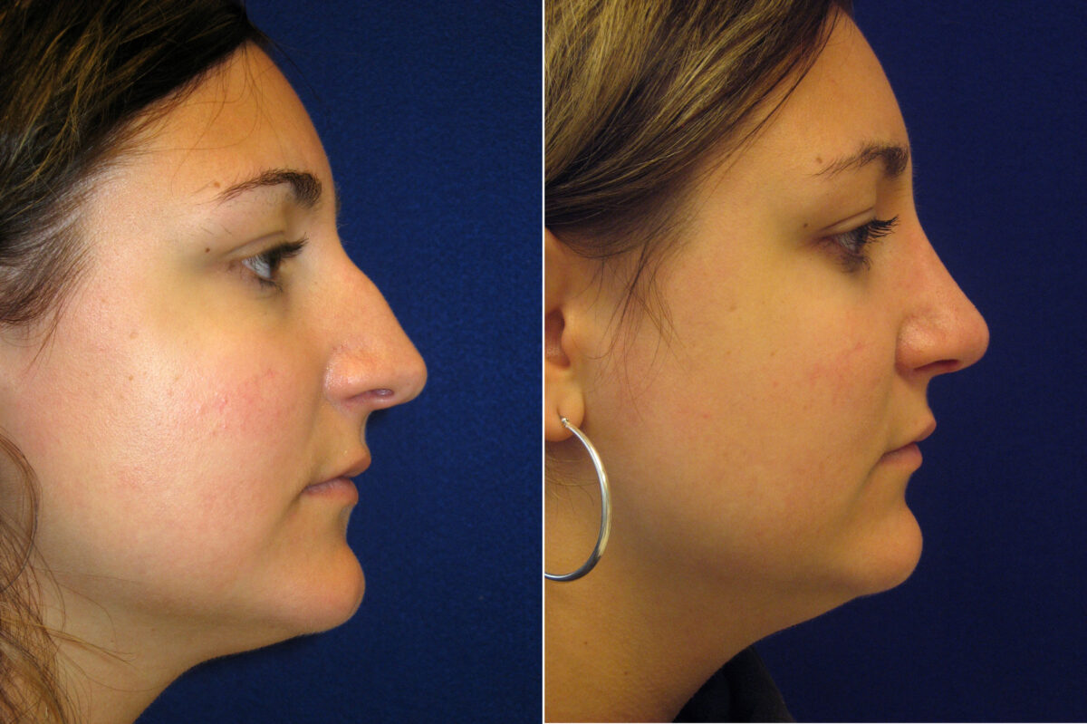 Nose Reshaping (Rhinoplasty) Before and After Photos in Lexington, KY, Patient 7090