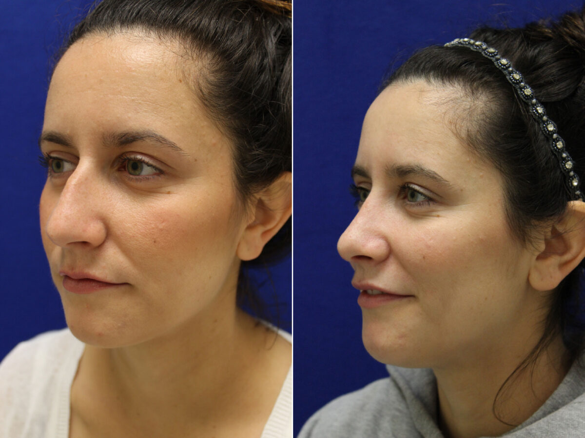 Nose Reshaping (Rhinoplasty) Before and After Photos in Lexington, KY, Patient 7150