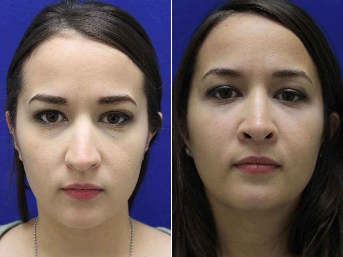 Nose Reshaping (Rhinoplasty) Before and After Photos in Lexington, KY, Patient 7160