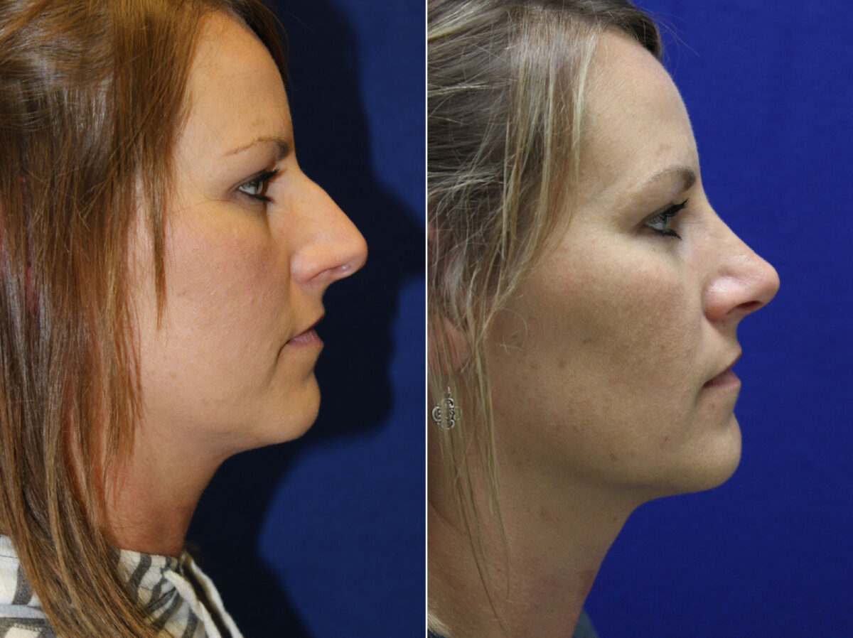 Nose Reshaping (Rhinoplasty) Before and After Photos in Lexington, KY, Patient 7170