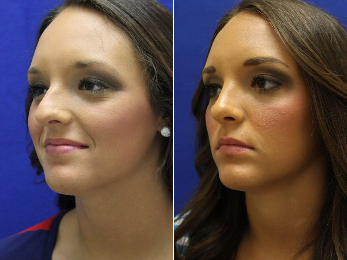 Nose Reshaping (Rhinoplasty) Before and After Photos in Lexington, KY, Patient 7180