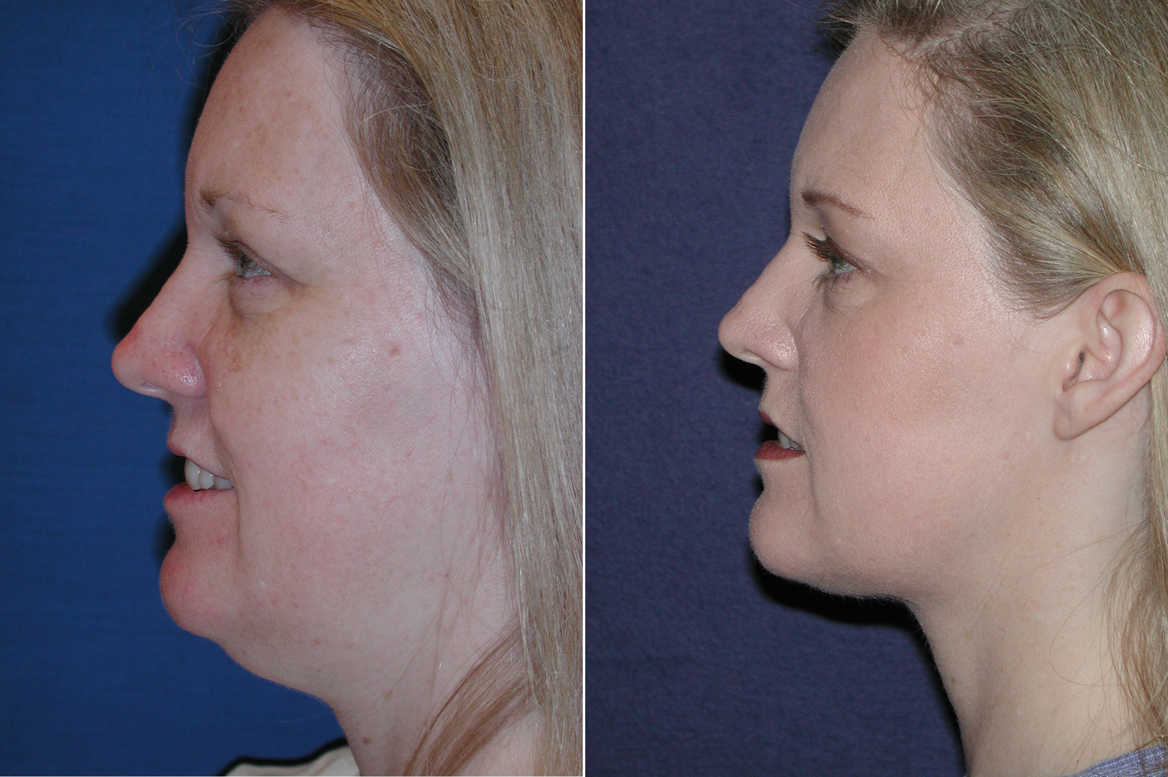 Before and After Photos in , , Neck Liposuction
