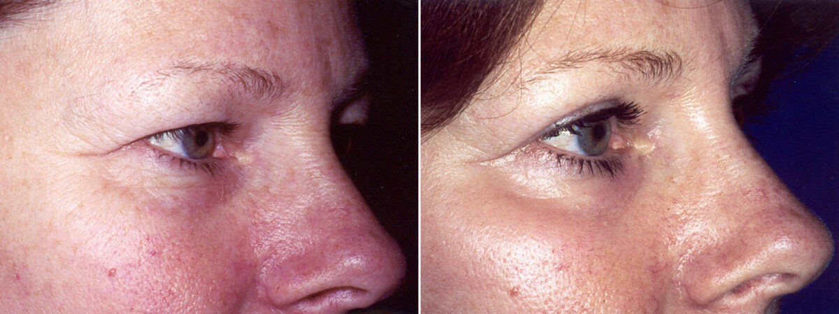 Upper & Lower Blepharoplasty Before and After Photos in Lexington, KY, Patient 8919