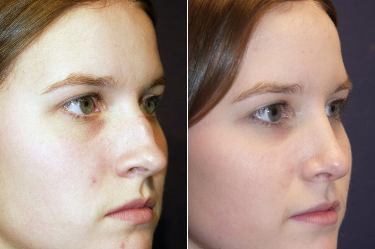 Nose Reshaping (Rhinoplasty) Before and After Photos in Lexington, KY, Patient 9281