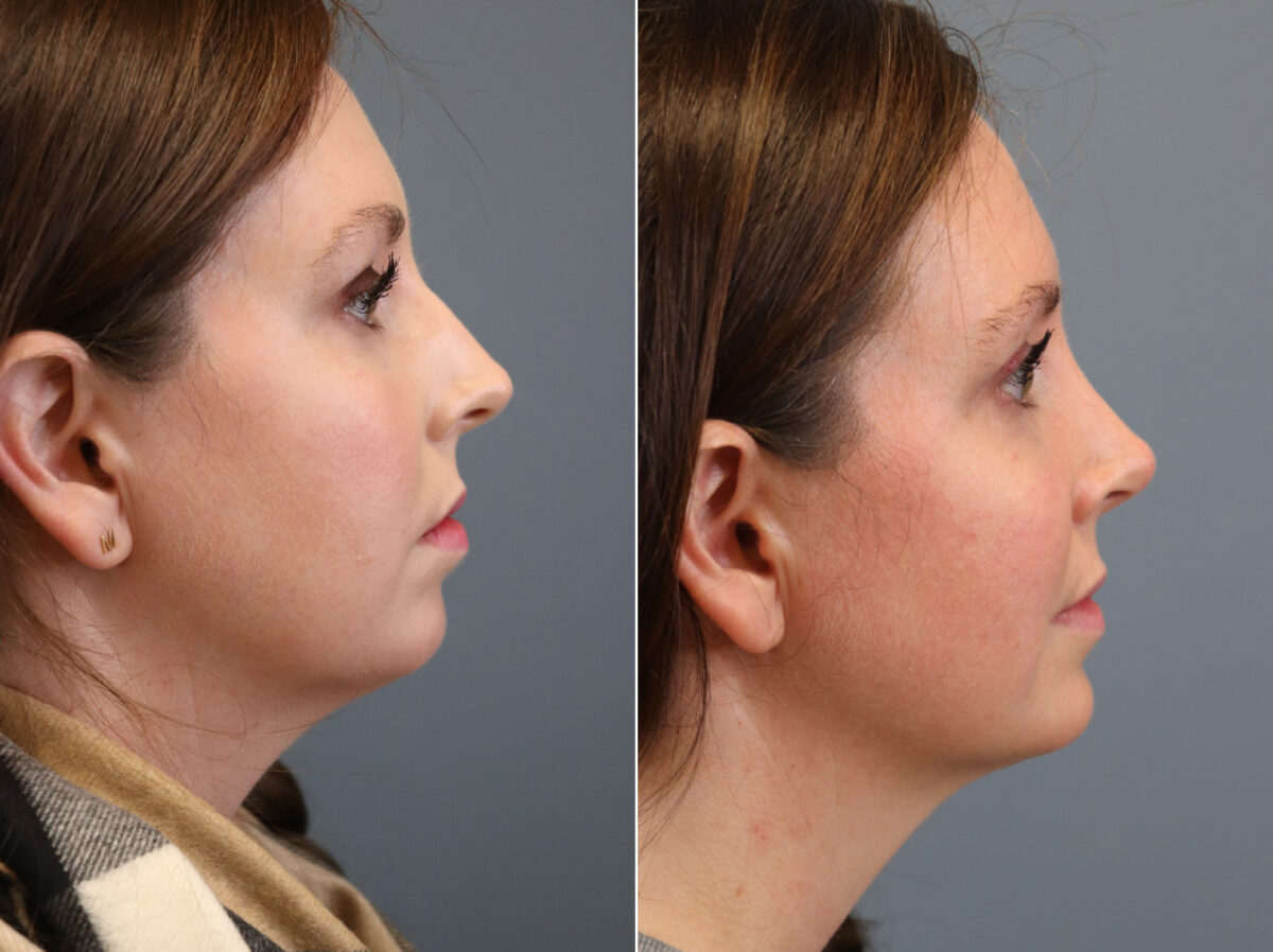 Nose Reshaping (Rhinoplasty) Before and After Photos in Lexington, KY, Patient 21325