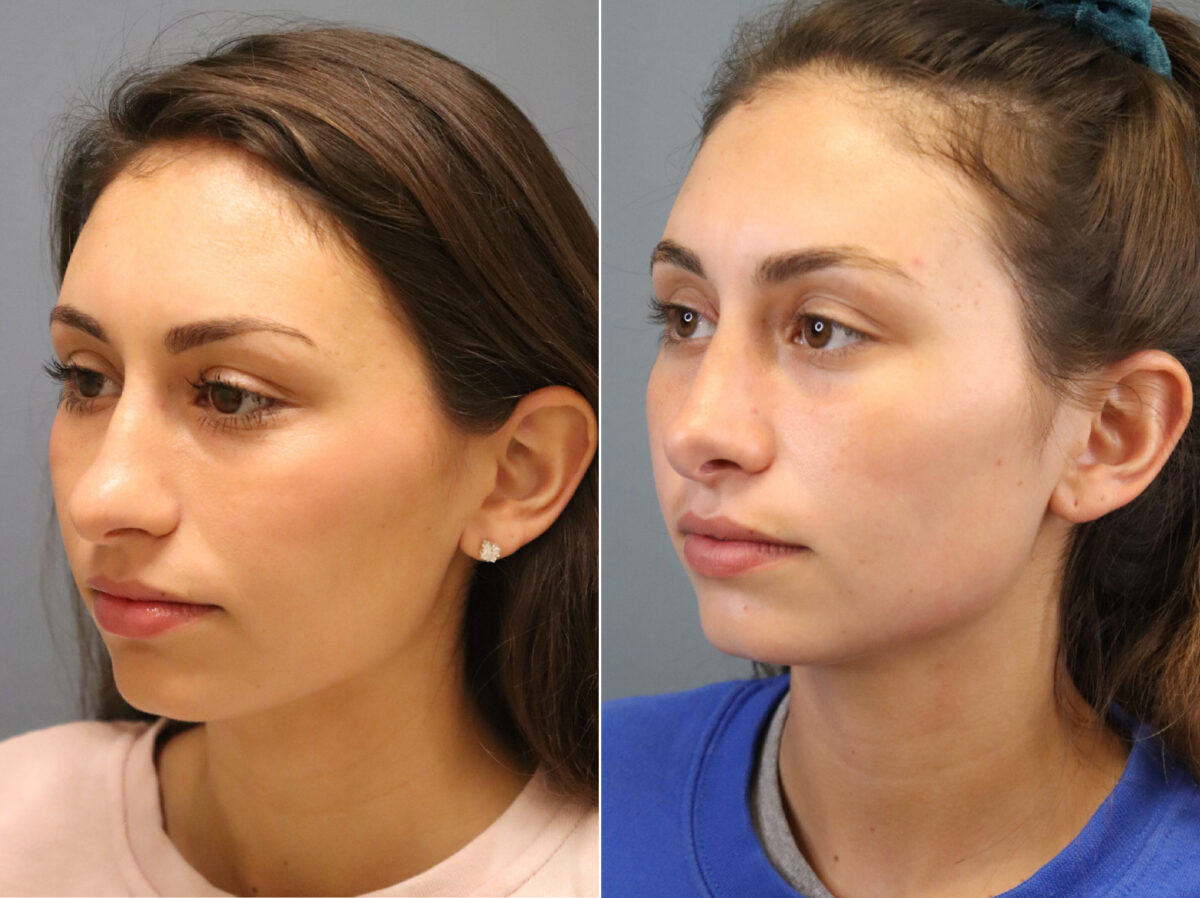 Nose Reshaping (Rhinoplasty) Before and After Photos in Lexington, KY, Patient 21337