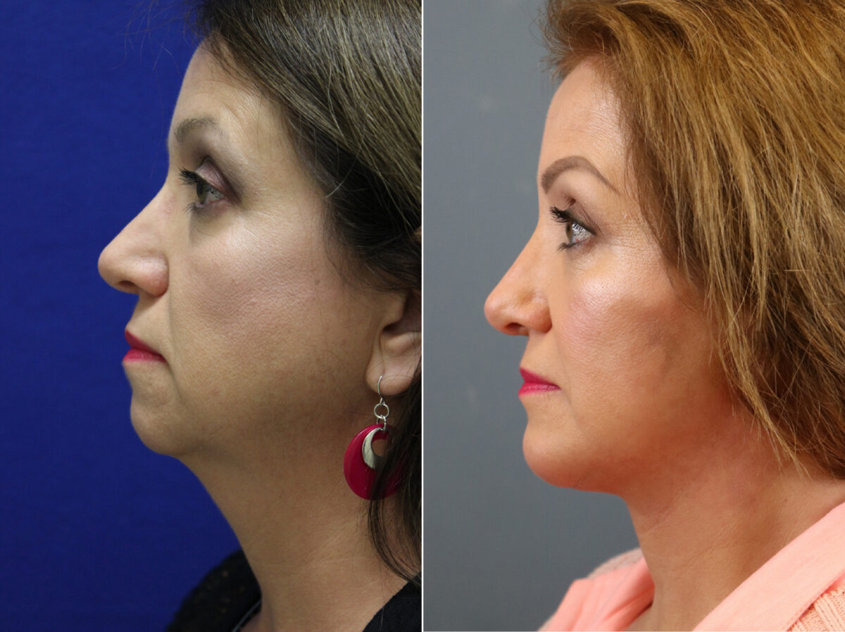 Chin Augmentation Before and After Photos in Lexington, KY, Patient 21358
