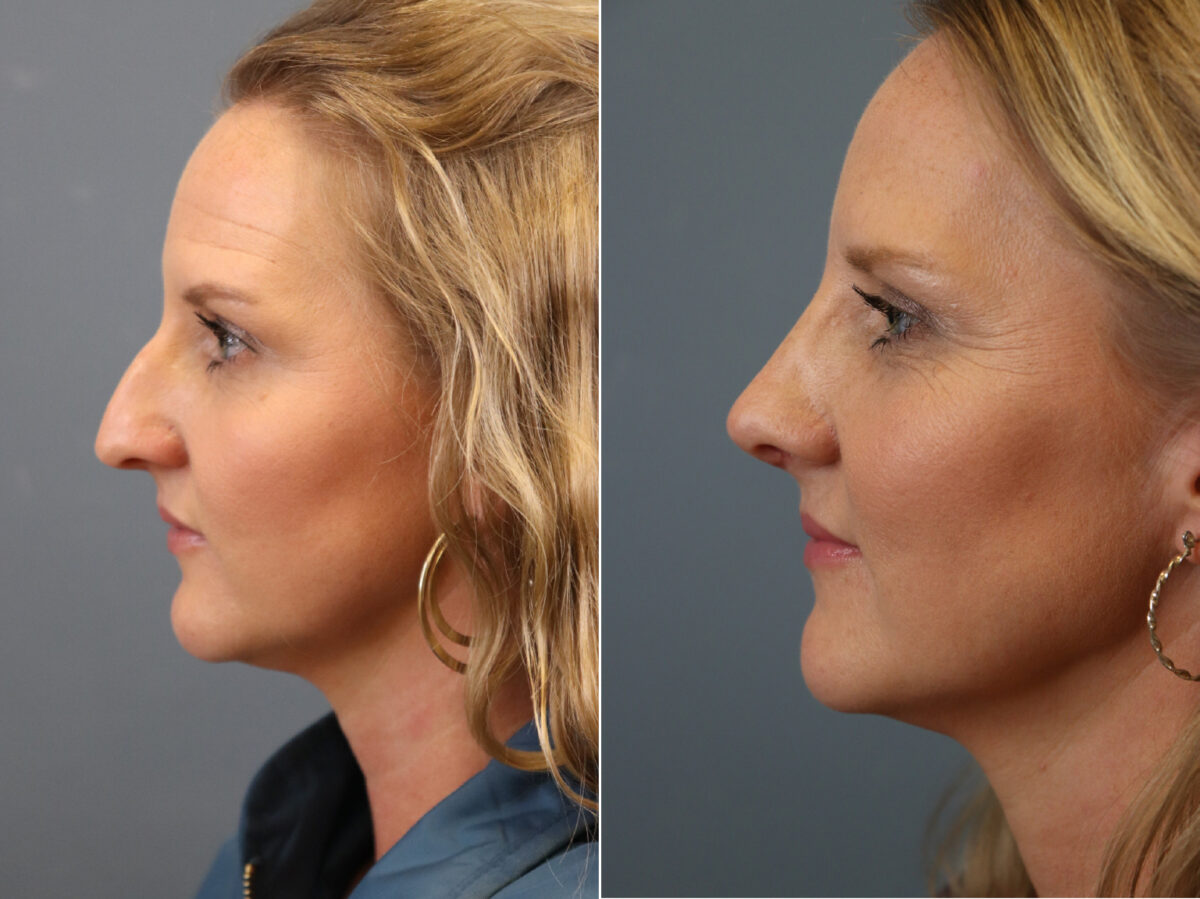 Rhinoplasty Before and After Photos in Lexington, KY, Patient 21385