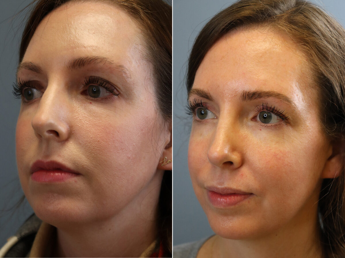 Nose Reshaping (Rhinoplasty) Before and After Photos in Lexington, KY, Patient 21463