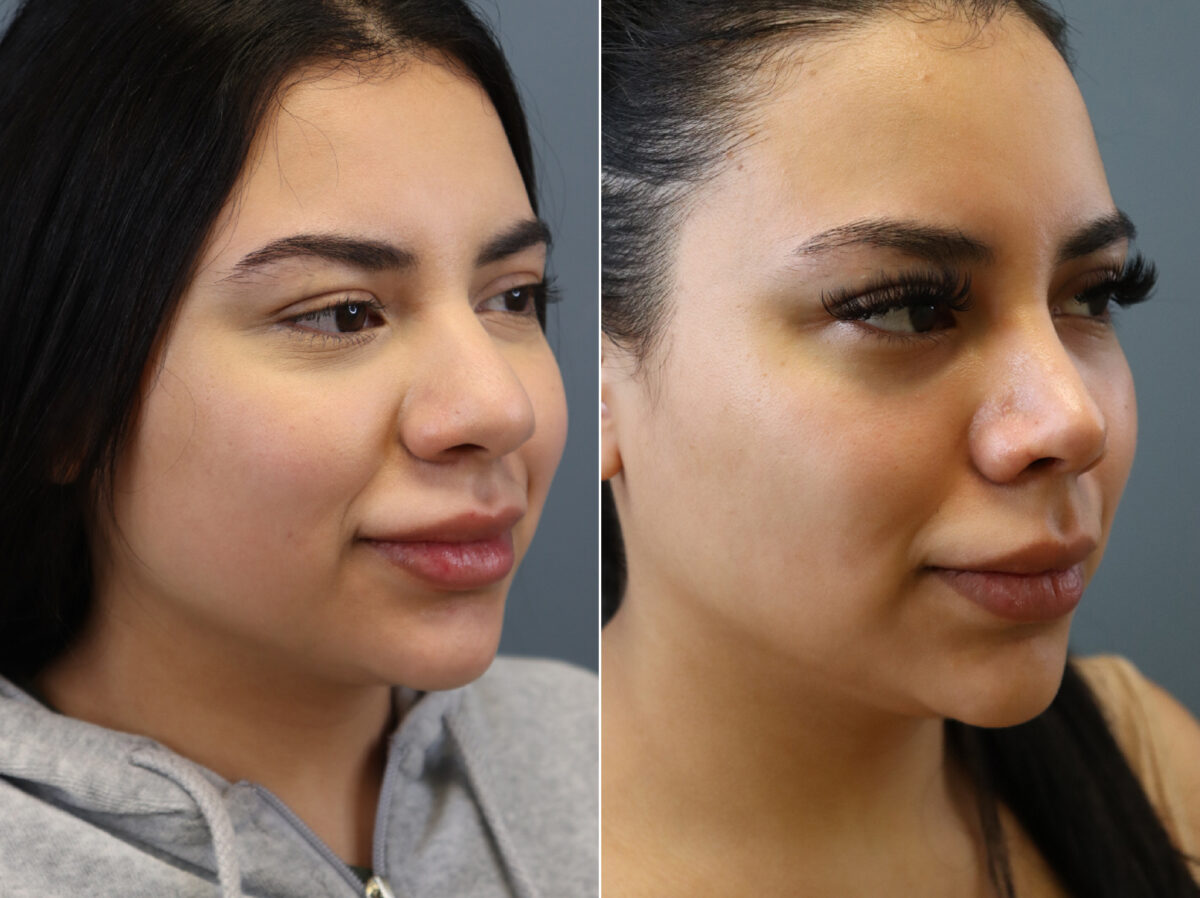 Nose Reshaping (Rhinoplasty) Before and After Photos in Lexington, KY, Patient 21481