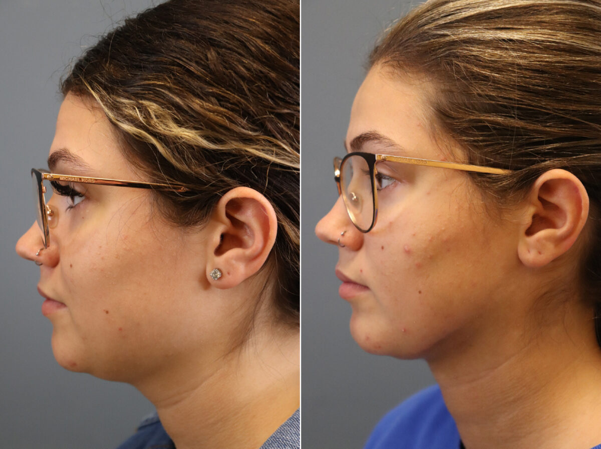 Neck Liposuction Before and After Photos in Lexington, KY, Patient 21510