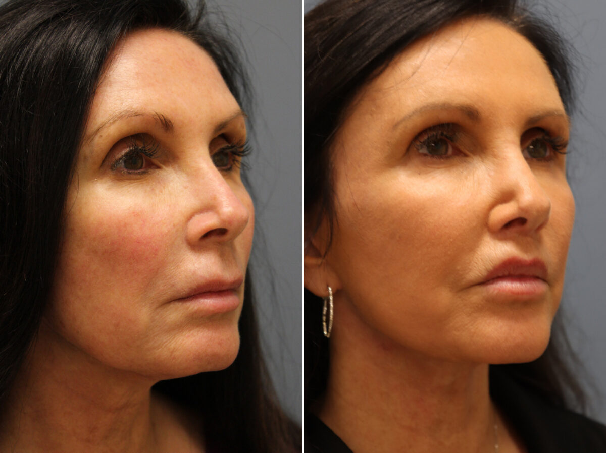Lip Enhancement Before and After Photos in Lexington, KY, Patient 21532