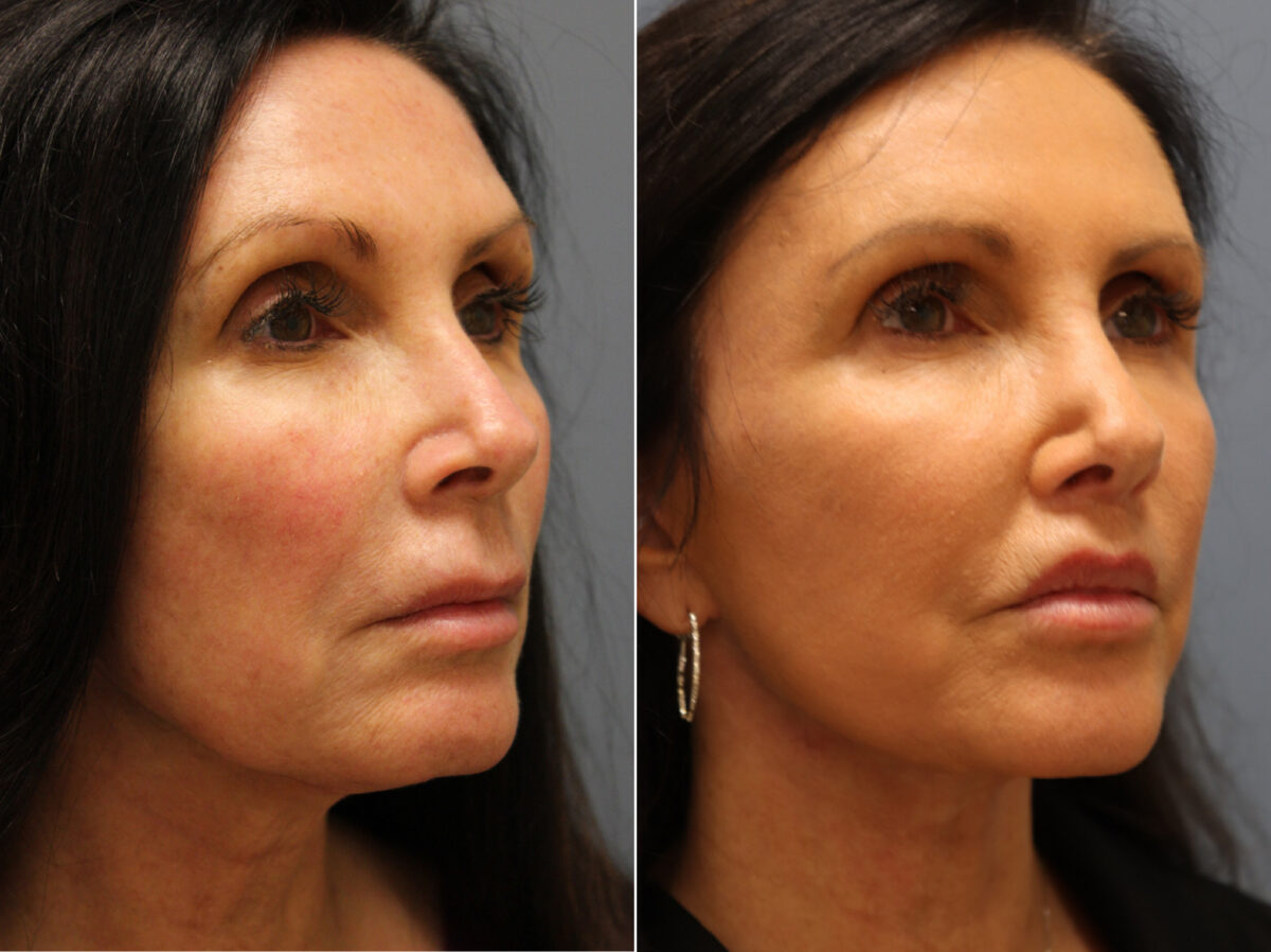 Facelift Before and After Photos in Lexington, KY, Patient 21542