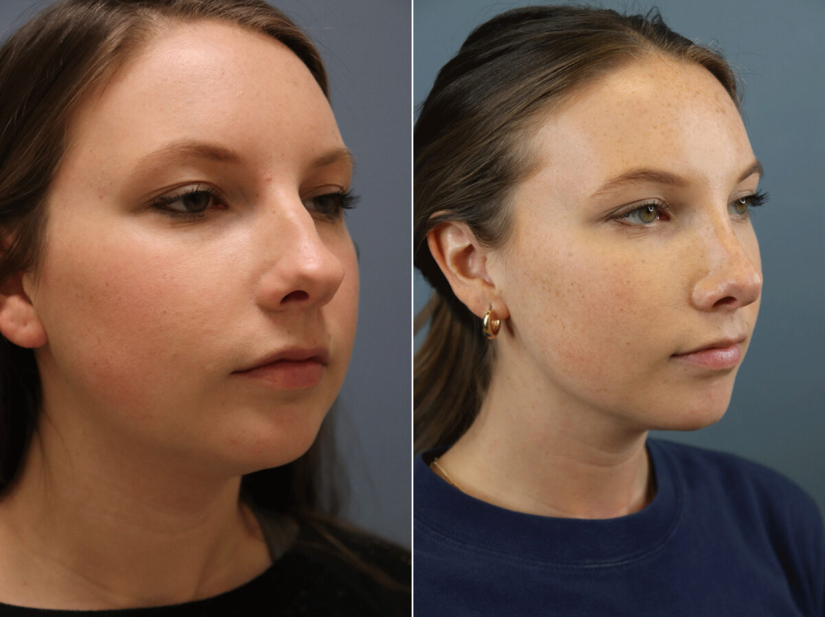 Nose Reshaping (Rhinoplasty) Before and After Photos in Lexington, KY, Patient 21586